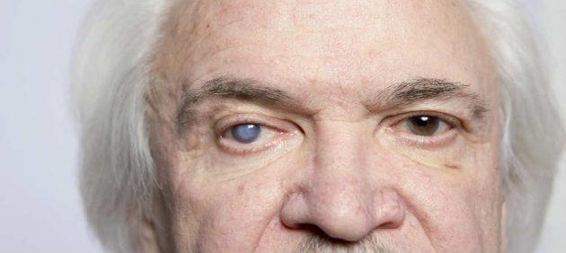 قطرة تيمولول Timolol لعلاج جلوكوما العين