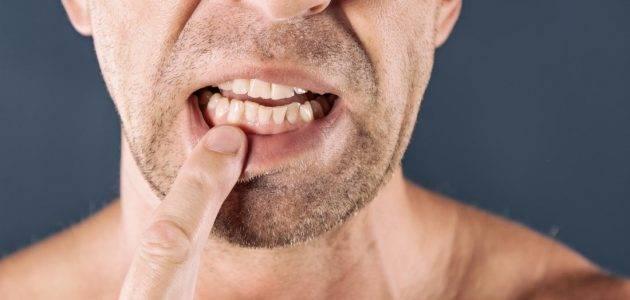 ادوية علاج التهاب اللثة والاسنان 2020