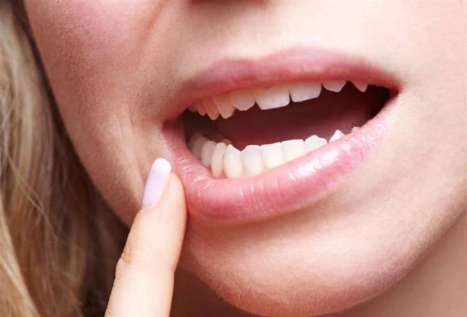 نشرة جيل ميراجل لعلاج فطريات الفم Miragel Gel
