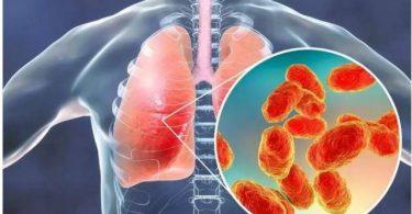 ميدولين MEDOLIN لعلاج الأمراض التنفسية