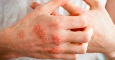 ميكوتير MICOTER علاج الأمراض الجلدية