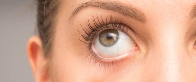 ابيجين Apigen لعلاج التهابات العينين