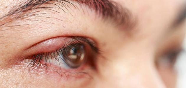 علاج كدمات الوجه